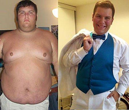 Преимущества желудочного шунтирования сохраняются в течение 12-ти лет