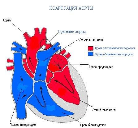 Коарктация аорты — симптомы и лечение, фото и видео