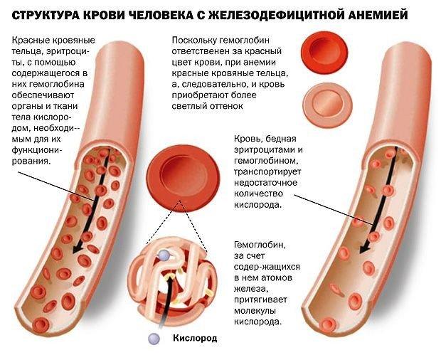 Железодефицитная анемия у детей — симптомы и лечение, фото и видео