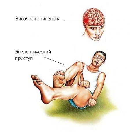 Эпилепсия у детей — симптомы и лечение, фото и видео