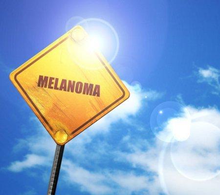 Австралийские исследователи говорят, что могут остановить распространение меланомы