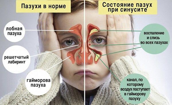 Гнойный ринит - симптомы и лечение, фото и видео.