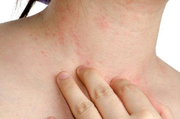 Почесуха — симптомы и лечение, фото и видео
