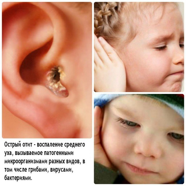 Отит у ребенка — симптомы и лечение, фото и видео