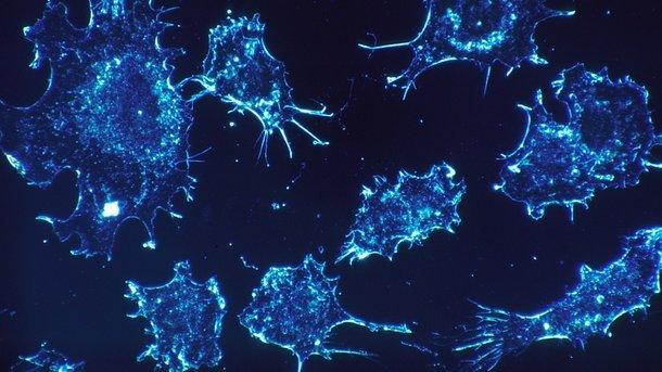 Ученые назвали жир «пищей» для развития 16 типов рака