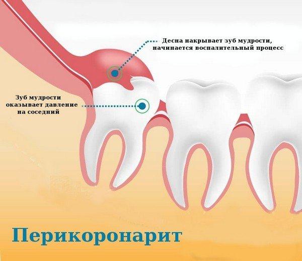 Зуб мудрости болит голова что делать