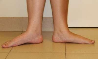 Плоскостопие у детей - симптомы и лечение, фото и видео.