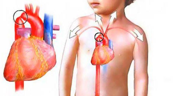 Коарктация аорты - симптомы и лечение, фото и видео.