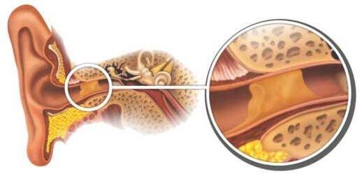 Серная пробка у ребенка – симптомы и лечение, фото и видео.