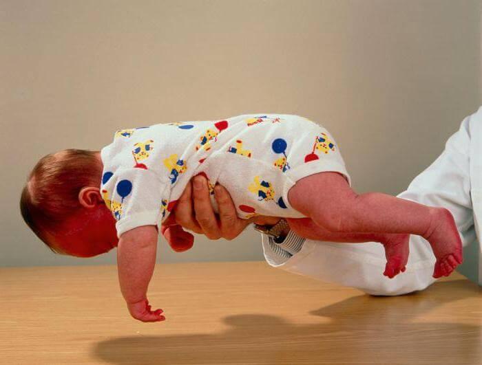 Синдром вялого ребенка – симптомы и лечение, фото и видео