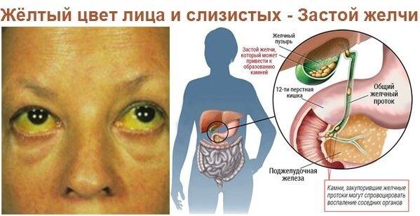 Холестаз - симптомы и лечение застоя печени.