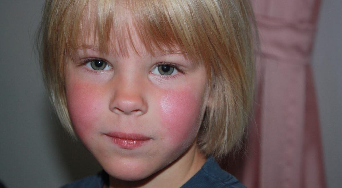 Парвовирус у детей — симптомы и лечение, фото и видео