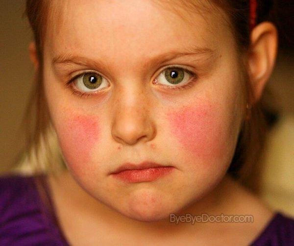 Парвовирус у детей - симптомы и лечение, фото и видео.