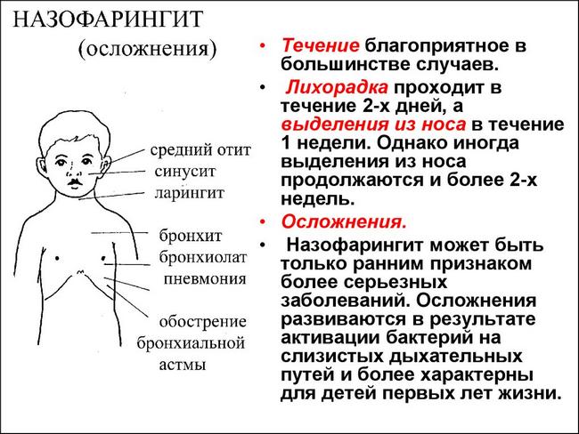 Назофарингит – симптомы и лечение, фото и видео