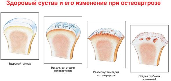 Деформирующий остеоартроз – симптомы и лечение, фото и видео