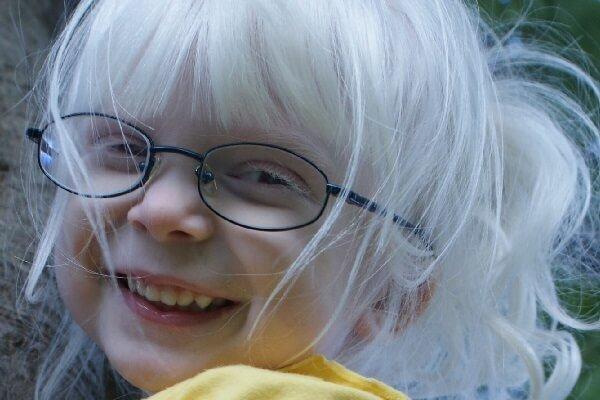 Альбинизм – симптомы и лечение, фото и видео
