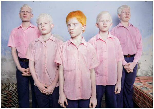 Альбинизм – симптомы и лечение, фото и видео.