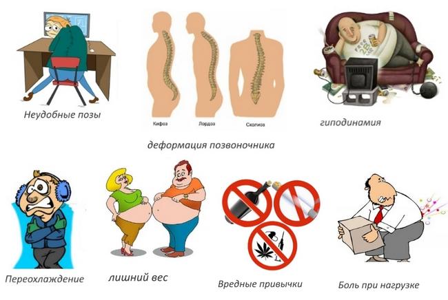 Цервикалгия – симптомы и лечение, фото и видео