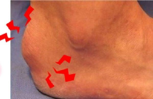 Болезнь Шинца – симптомы и лечение, фото и видео.