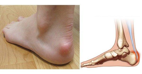 Болезнь Шинца – симптомы и лечение, фото и видео