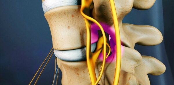Цервикалгия – симптомы и лечение, фото и видео.