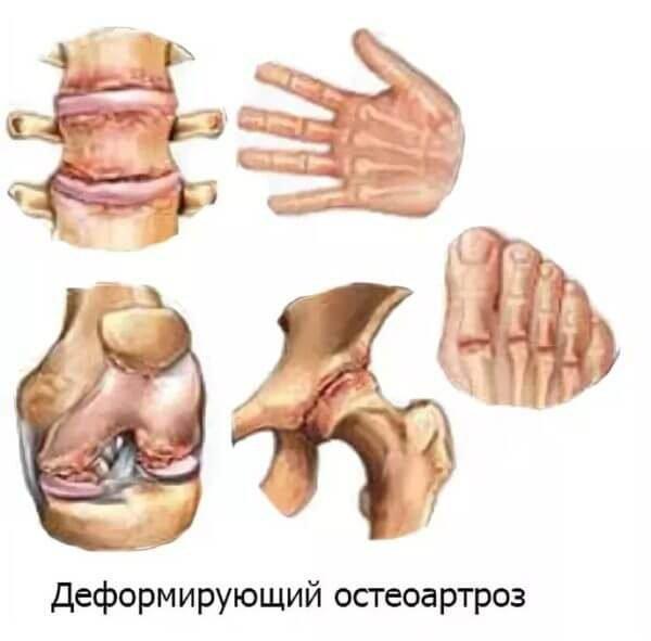 Деформирующий остеоартроз – симптомы и лечение, фото и видео.