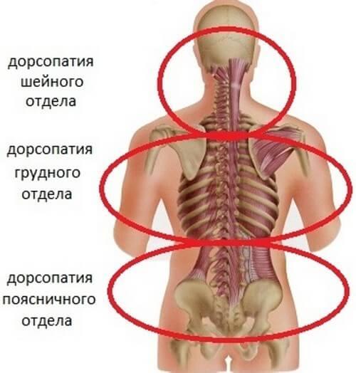 Дорсопатия – симптомы и лечение, фото и видео.