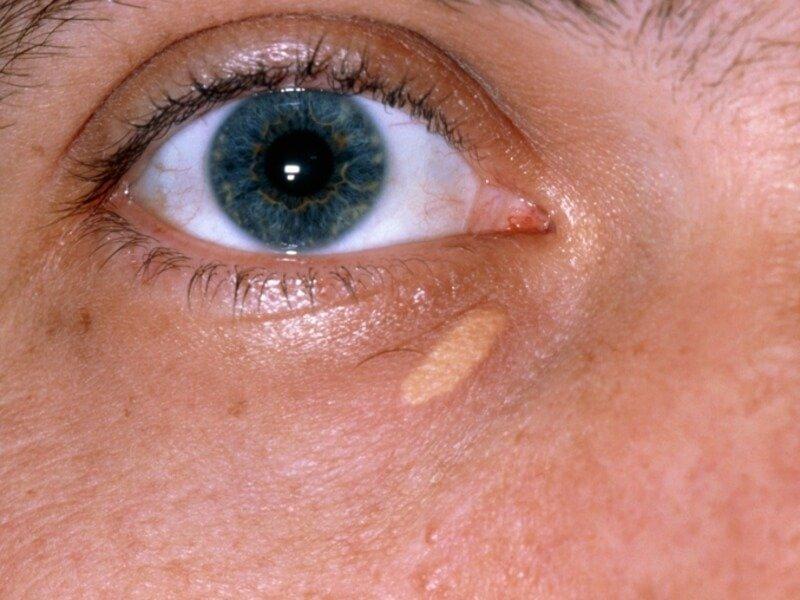 Ксантома на коже – симптомы и лечение, фото и видео