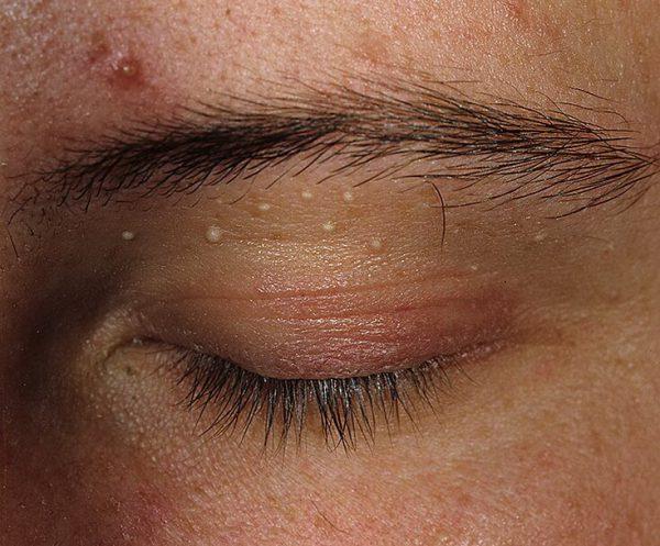Ксантома на коже – симптомы и лечение, фото и видео.