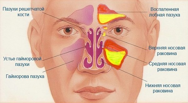 Назофарингит – симптомы и лечение, фото и видео.