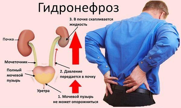 Нефроз – симптомы и лечение, фото и видео.