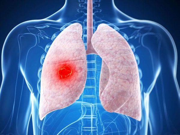 Опухоль легких – симптомы и лечение, фото и видео.