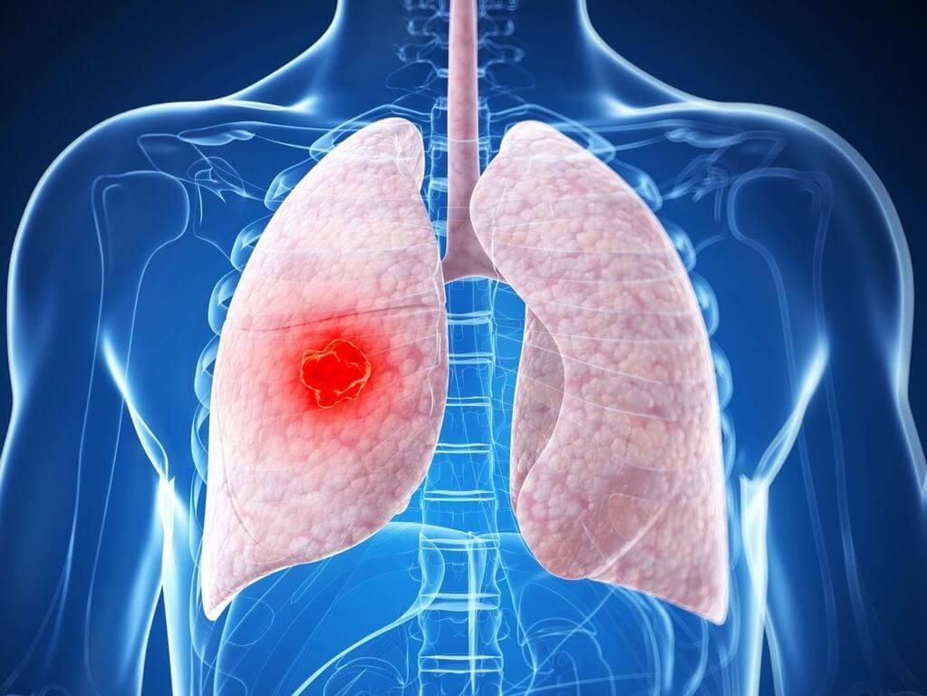 Опухоль легких – симптомы и лечение, фото и видео