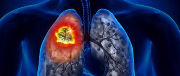 Злокачественная опухоль легких – симптомы и лечение, фото и видео.