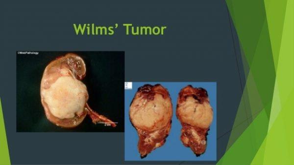 Опухоль Вильмса или нефробластома.