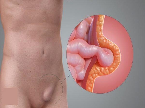 Паховая грыжа у мужчин – симптомы и лечение, фото и видео.