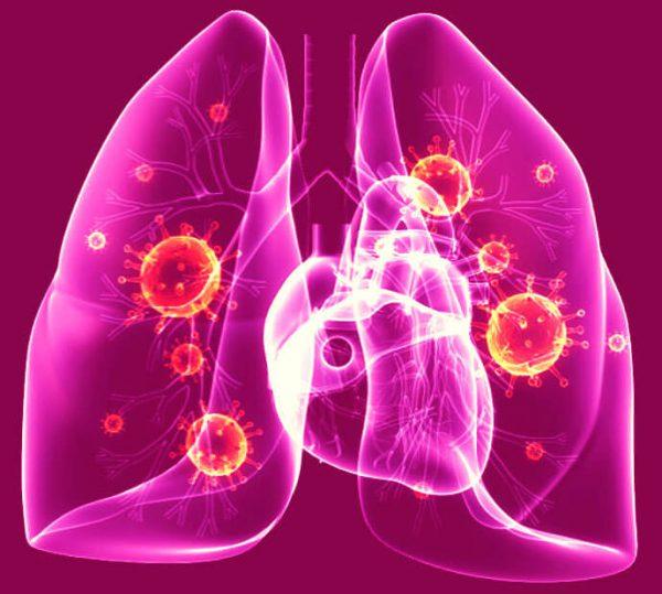 Пневмоцистная пневмония – симптомы и лечение, фото и видео.