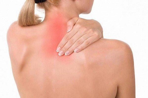 Вертеброгенная цервикалгия – симптомы и лечение, фото и видео