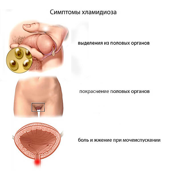 Хламидиоз у мужчин - симптомы и лечение, фото и видео.