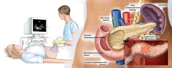 Хронический панкреатит обострение – симптомы и лечение, фото и видео.