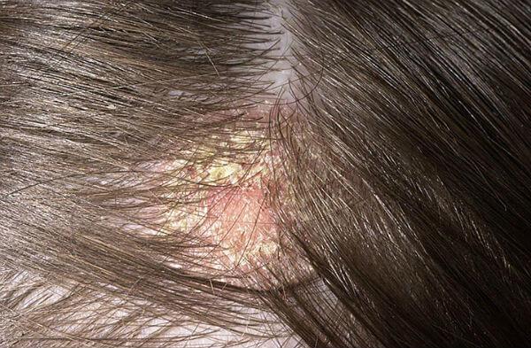 Жирная себорея – симптомы и лечение, фото и видео