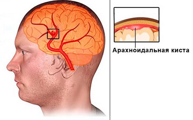Арахноидальная киста – симптомы и лечение, фото и видео