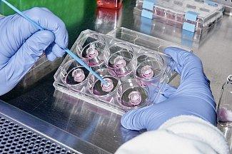 Мочегонный препарат гидрохлортиазид приводит к раку кожи