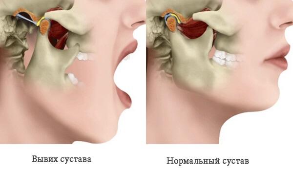 Вывих нижней челюсти – симптомы и лечение, фото и видео