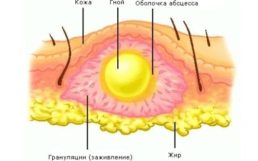 Абсцесс ягодицы после укола – симптомы и лечение, фото и видео.