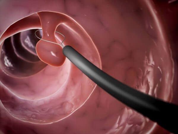 Аденоматозный полип – симптомы и лечение, фото и видео.