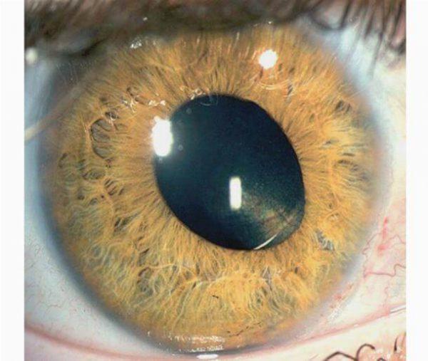 Афакия глаз – симптомы и лечение, фото и видео.