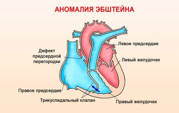 Аномалия Эбштейна – симптомы и лечение, фото и видео.