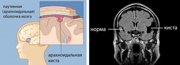 Арахноидальная киста – симптомы и лечение, фото и видео.