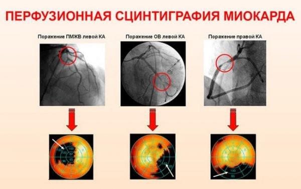 Аритмогенная дисплазия – симптомы и лечение, фото.